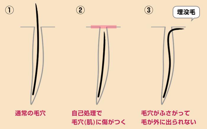 maibotsuge