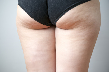 Fatty female hips. Skin care, cellulite. Obesity